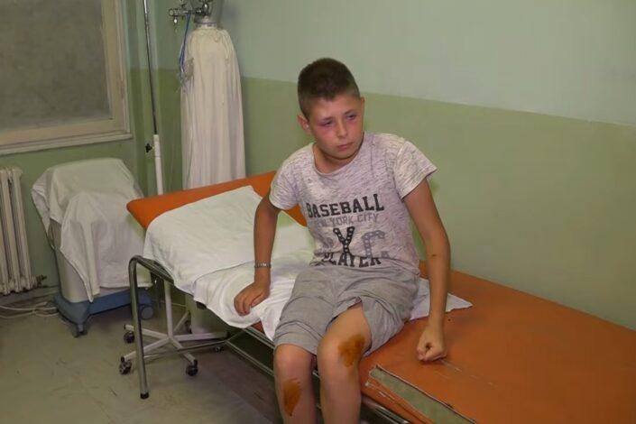 U selu Gojbulja na Kosmetu grupa Albanaca pretukla srpskog dečaka