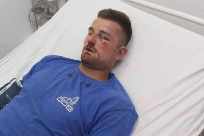 Nastavlja se etničko čišćenje: Srbin na KiM pretučen dok je čuvao stoku